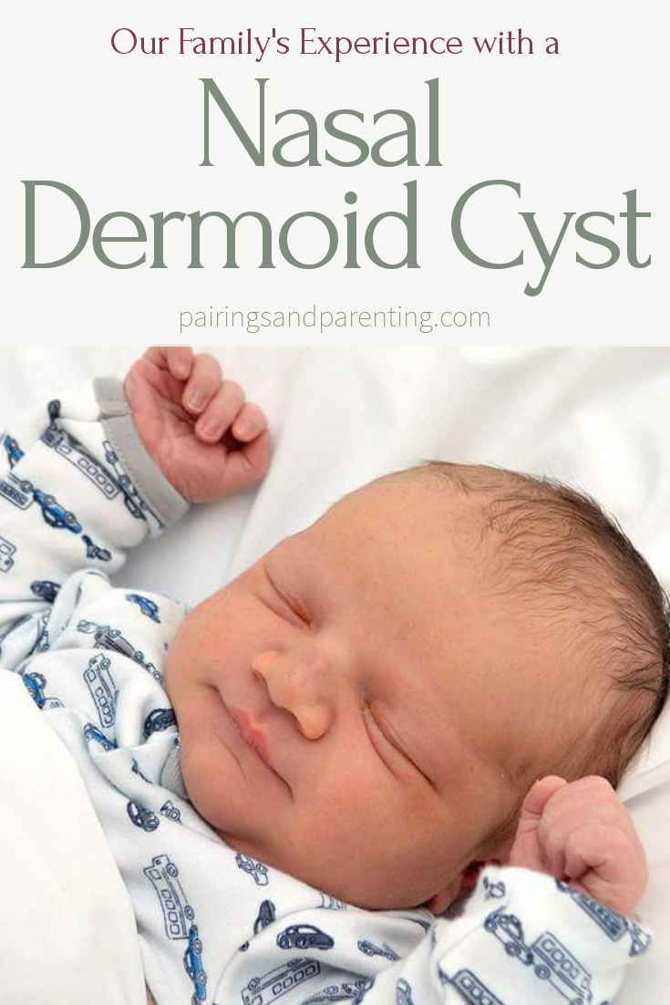 Nasal Dermoid Cyst, Our Family's Experience